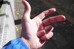 下り坂では小指を握るように曲げる