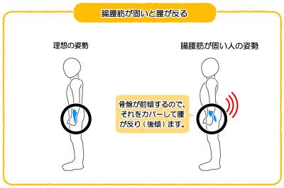 腸腰筋が固いと腰に負担がかかる